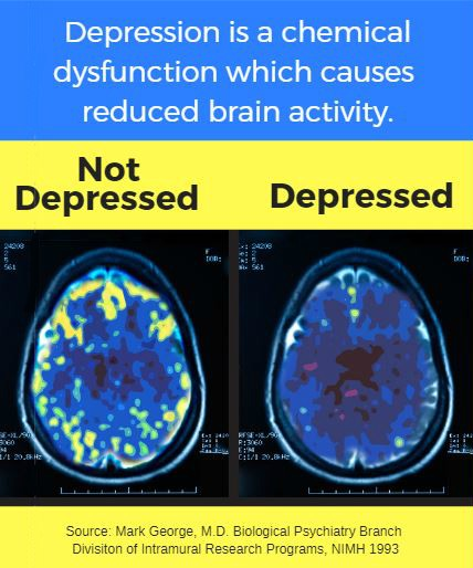 image of depressed brain vs non-depressed brain